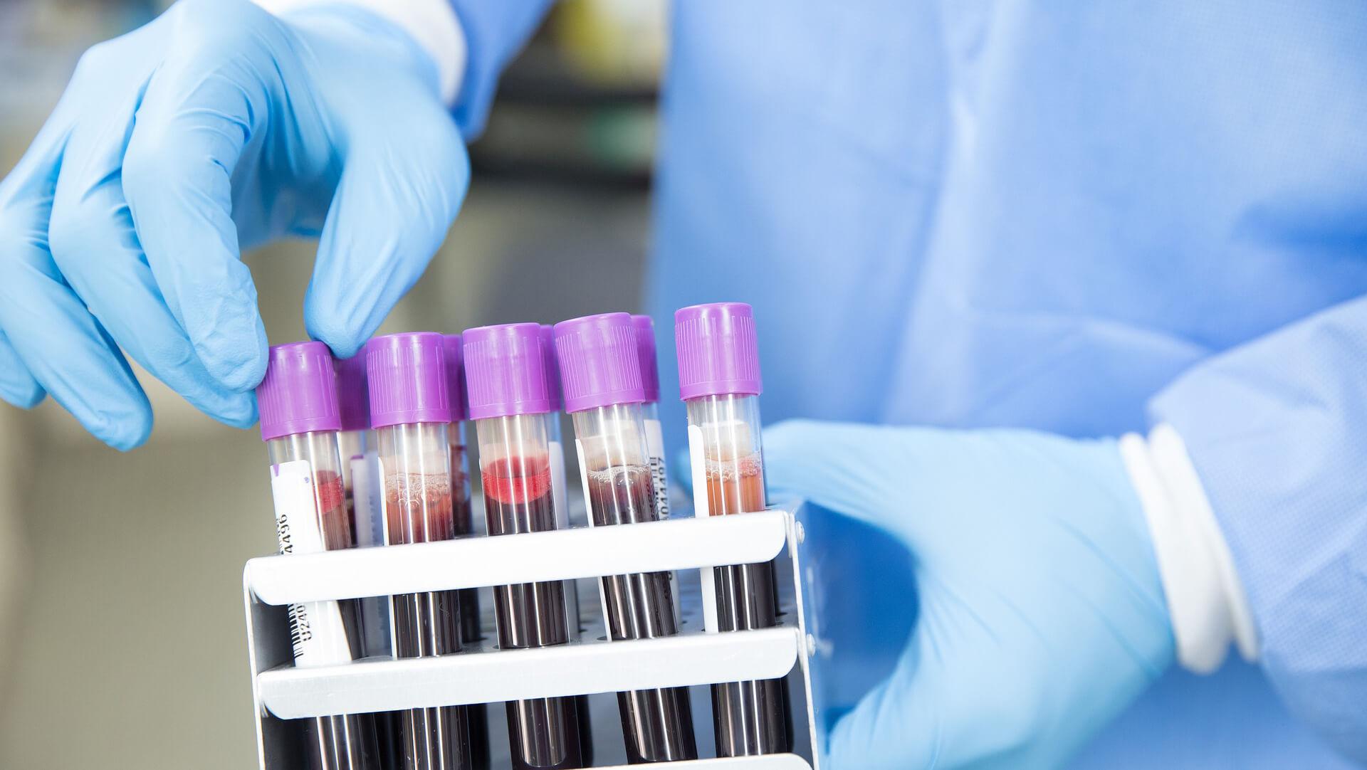 Schnelle Wundheilung mit Eigenbluttherapie